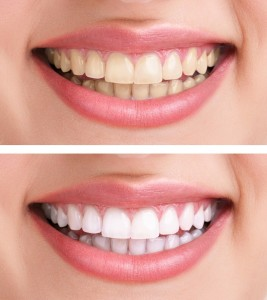 Zoom Teeth Whitening New River Valley Dental New River Valley